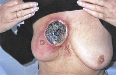 Krebs behandeln mit pflanzlichen Salben Die schwarze Krebs Salbe