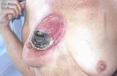 Krebs behandeln mit pflanzlichen _Salben Die schwarze Krebs Salbe