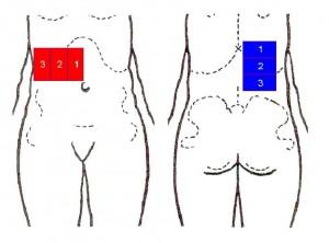 32. Patient mit Lebermetastasen