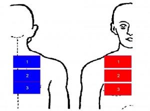 35. Patient mit einem Adeno Karzinom der Lunge rechts
