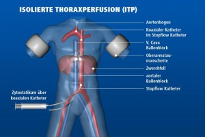Isolierte Thoraxperfusion