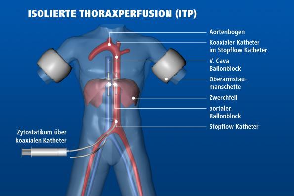 endstadium hirntumor symptome