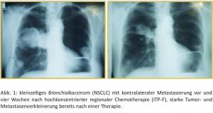 Röntgenbil nichtkleinzelliges Bronchialkarzinom
